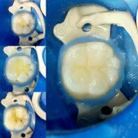 Лечение кариеса в стоматологической клинике Нью Смайл